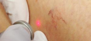 couperose-laser